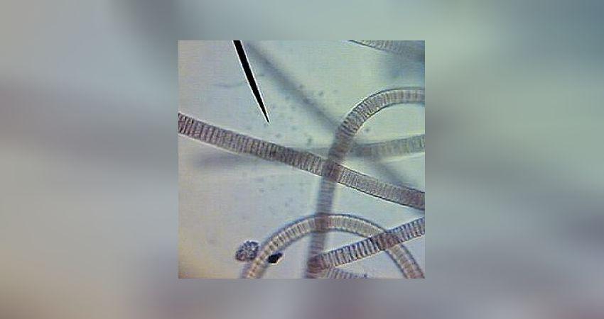 algen und bakterien im meerwasseraquarium richtig bestimmen. Black Bedroom Furniture Sets. Home Design Ideas